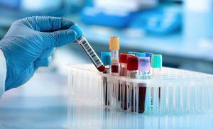 poza hematologie craiova