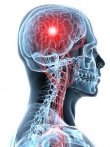 creier neurologie craiova